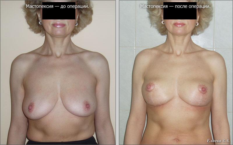 Кремы гели таблетки для увеличения груди
